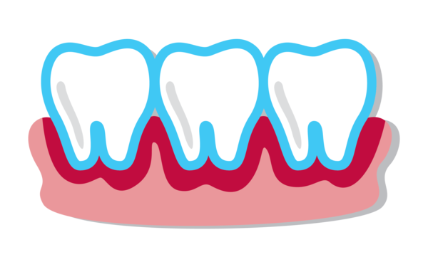 Bleeding Gums, Periodontal Disease