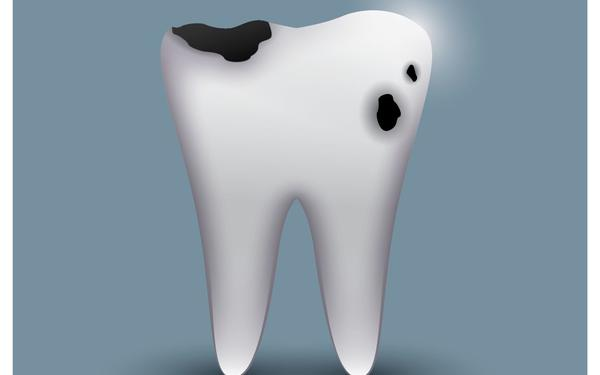 tooth, cavity